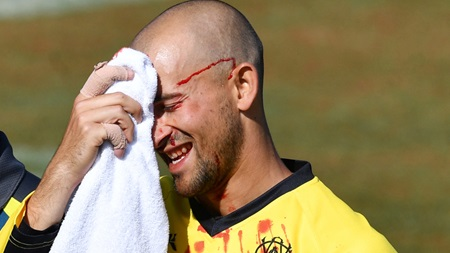 Agar suffers gruesome injury after dropping own brother