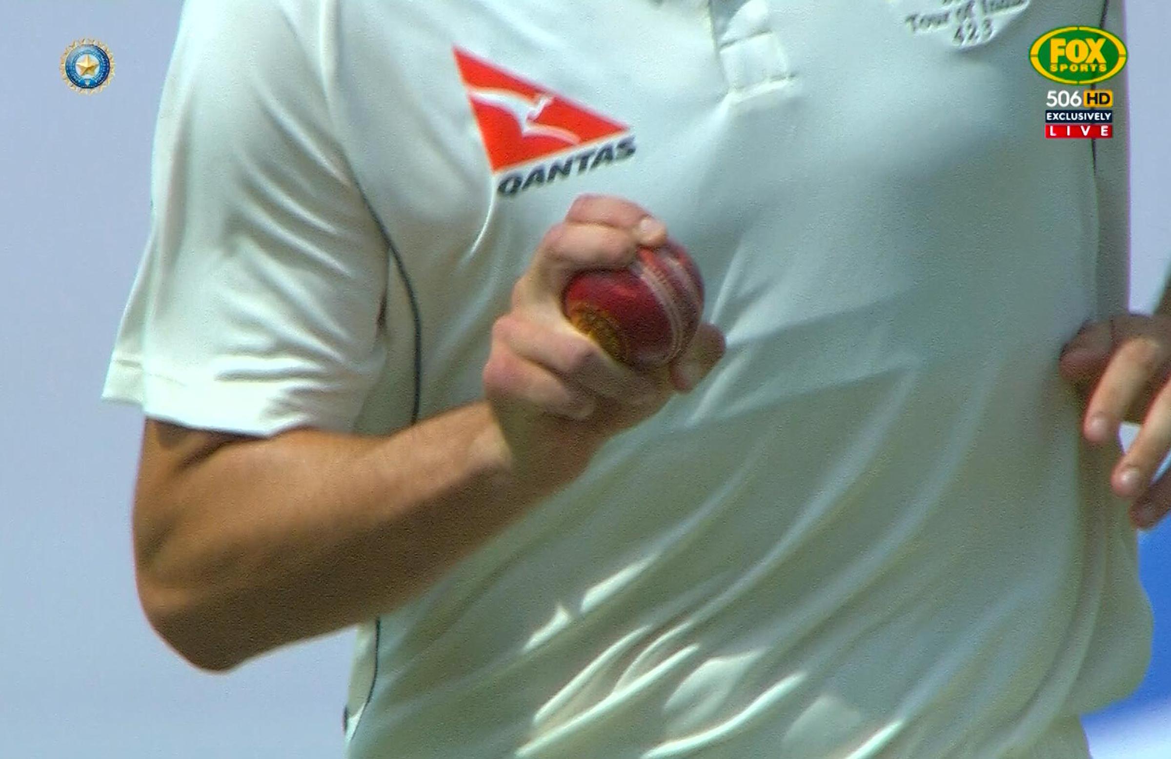 A close look at Cummins's shortened finger // Fox Sports