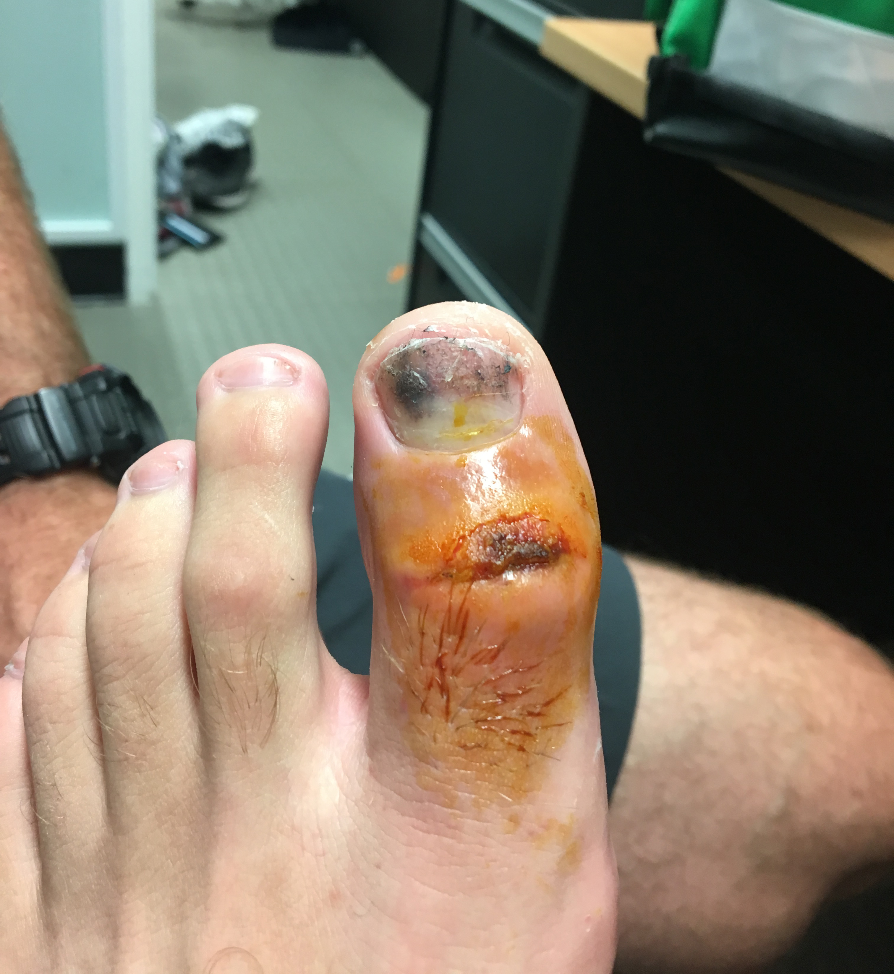 A close-up of Stanlake's damaged toe pre-surgery // Supplied