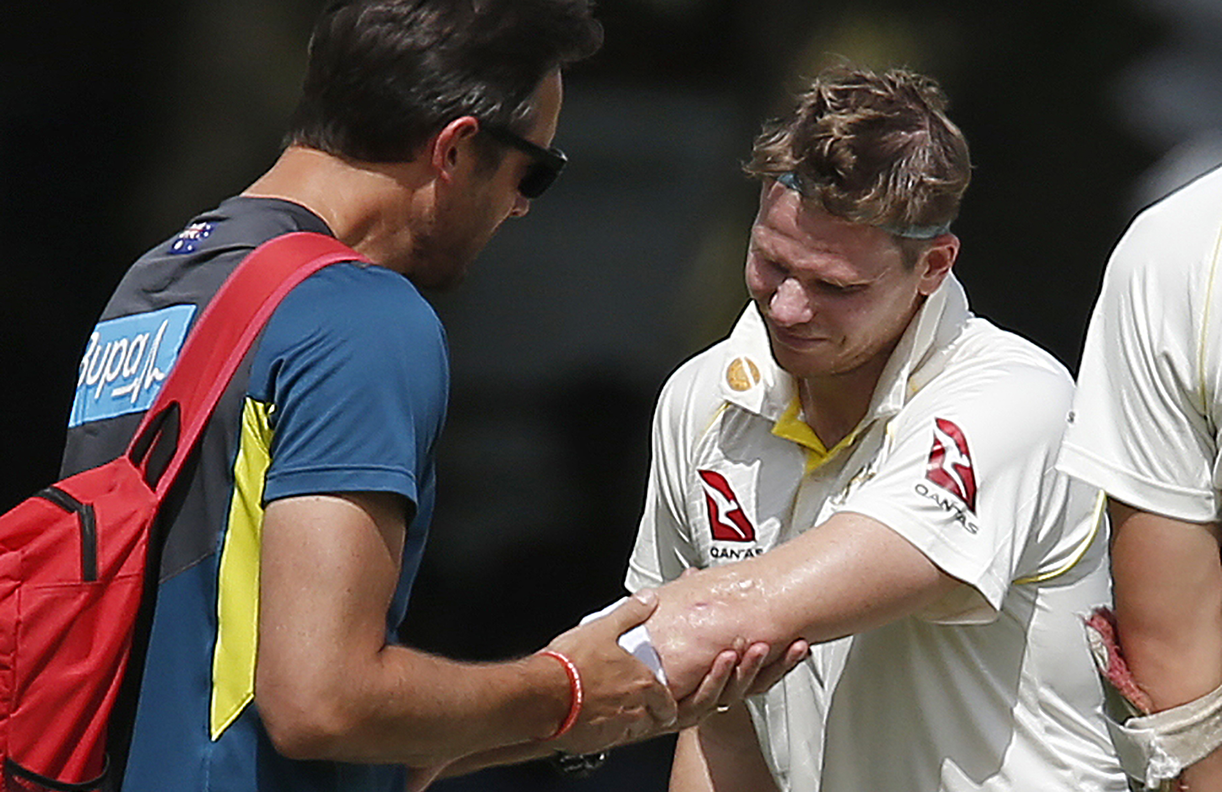 Smith gets his arm examined by the physiotherapist // Getty
